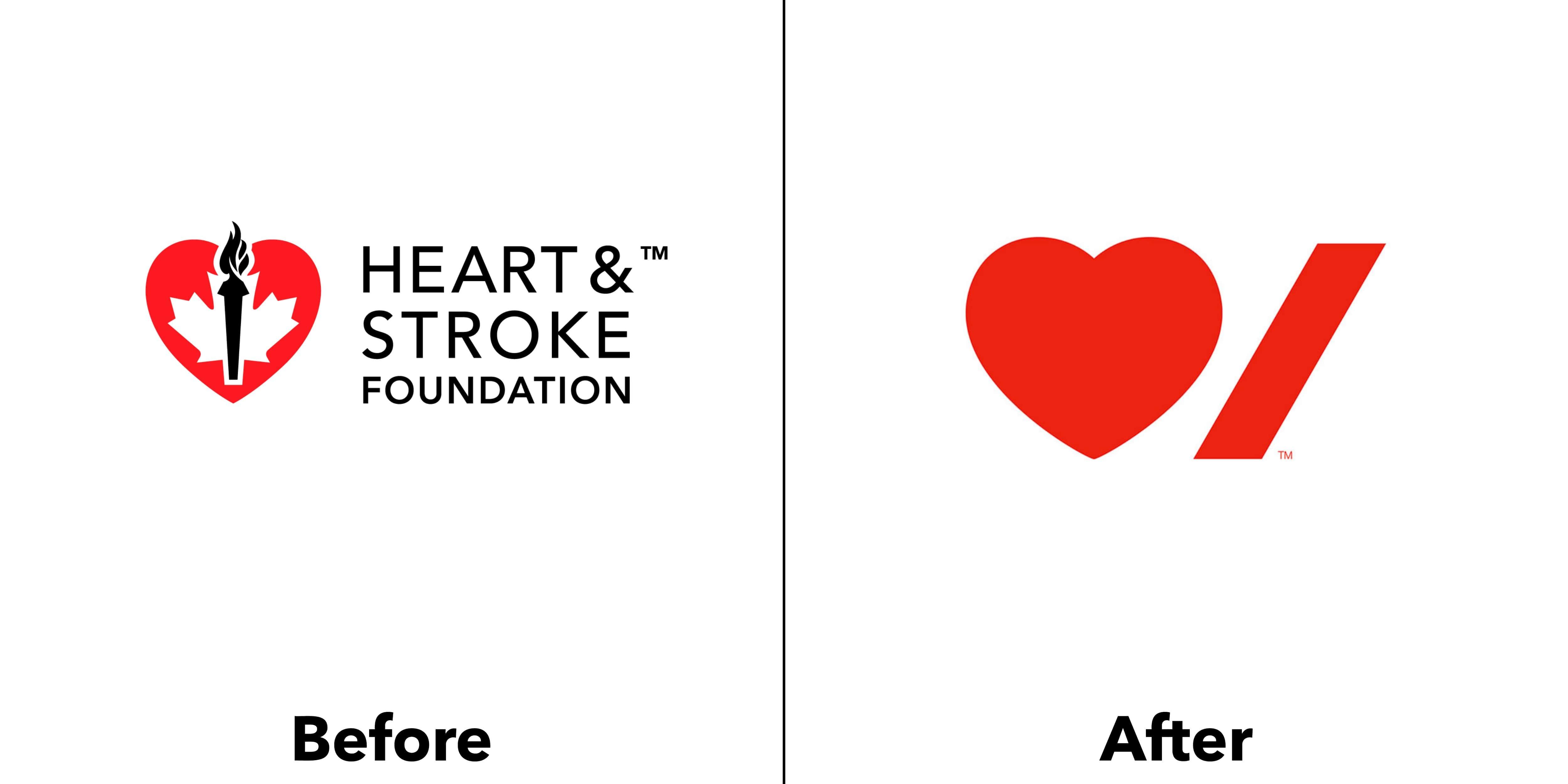 logo heart stroke trước và sau